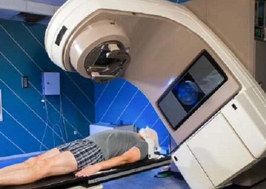 radiation-therapy-side-effects
