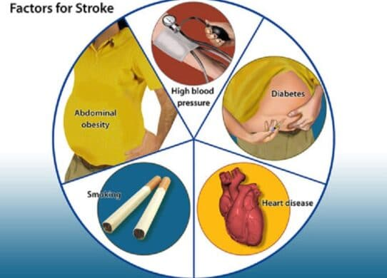 Stroke: Diabetes and Other Risk Factors !