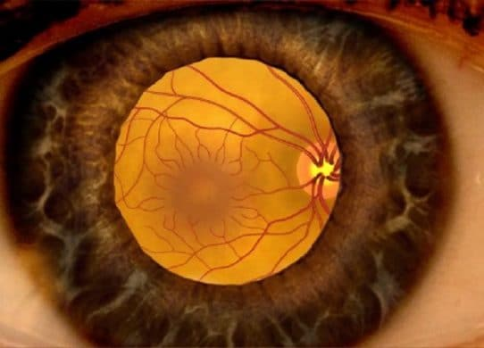 Diabetic Macular Edema What You Need to Know !